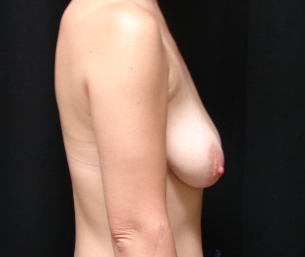 breast-augmentation-with-lift-pre-op-2-virginia-beach-plastic-surgeon-VA-101-JSA