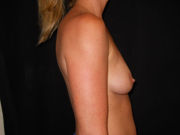 breast-augmentation-with-lift-pre-op-2-virginia-beach-plastic-surgeon-VA-101-JSJ