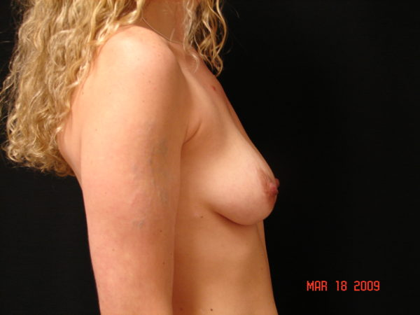 breast-augmentation-with-lift-pre-op-2-virginia-beach-plastic-surgeon-VA-101-MJD