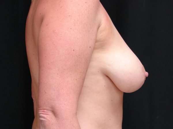 breast-augmentation-with-lift-pre-op-2-virginia-beach-plastic-surgeon-VA-102-JSA
