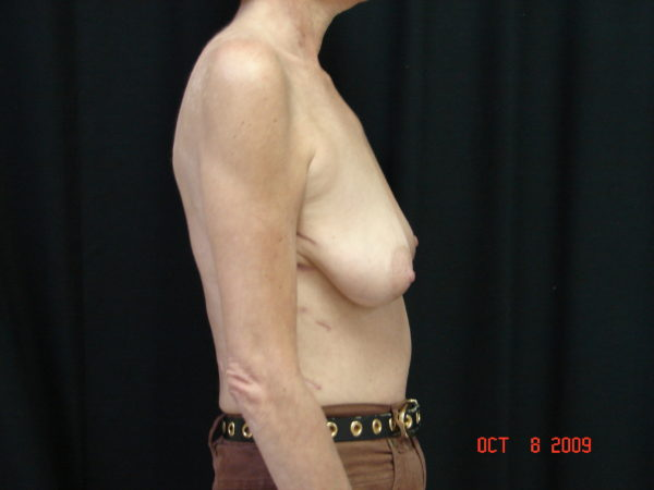 breast-augmentation-with-lift-pre-op-2-virginia-beach-plastic-surgeon-VA-103-JSA