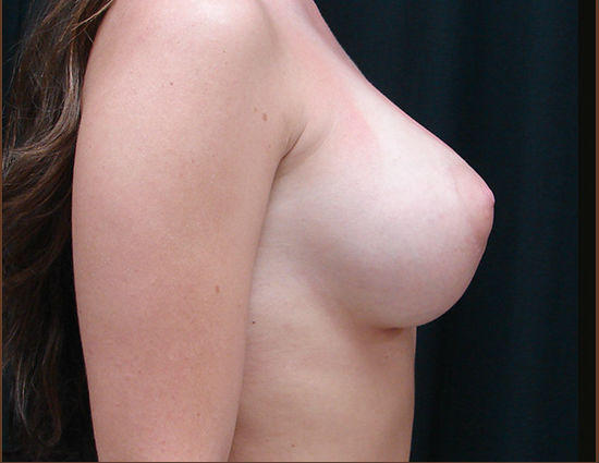 After-Breast Enhancement