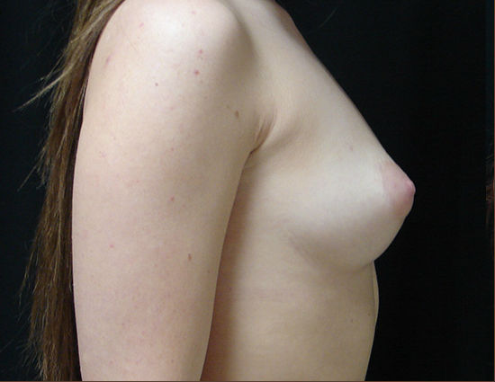 Before-Breast Enhancement