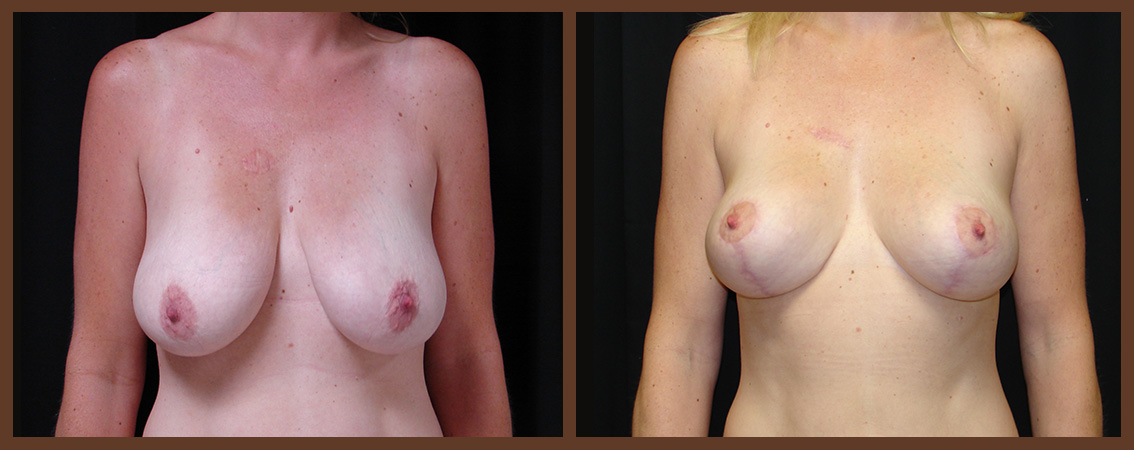 breast-lift-before-and-after-1-virginia-beach-plastic-surgeon-VA-0038-JSA