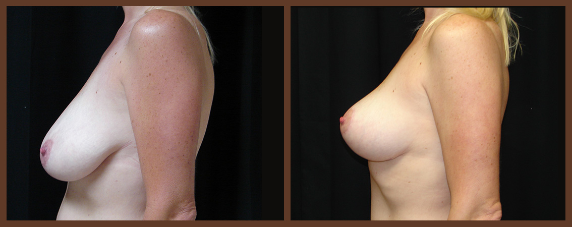 breast-lift-before-and-after-2-virginia-beach-plastic-surgeon-VA-0038-JSA