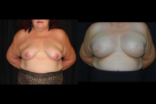 breast-reconstruction-before-and-after-1-virginia-beach-plastic-surgeon-VA-0193-denk.jpg