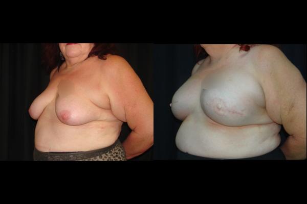 breast-reconstruction-before-and-after-2-virginia-beach-plastic-surgeon-VA-0193-denk.jpg