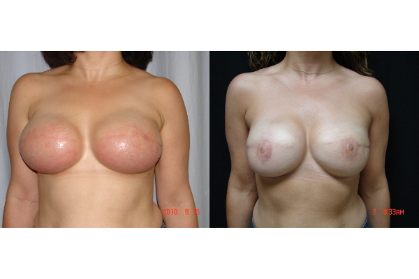 breast-reconstruction-before-and-after-virginia-beach-plastic-surgeon-VA-101-JSJ
