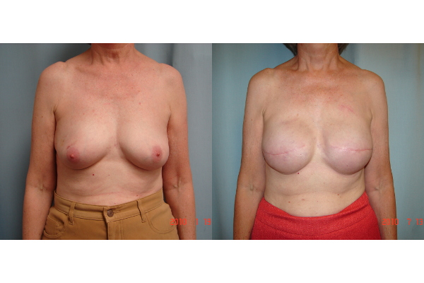 breast-reconstruction-before-and-after-virginia-beach-plastic-surgeon-VA-102-JSJ