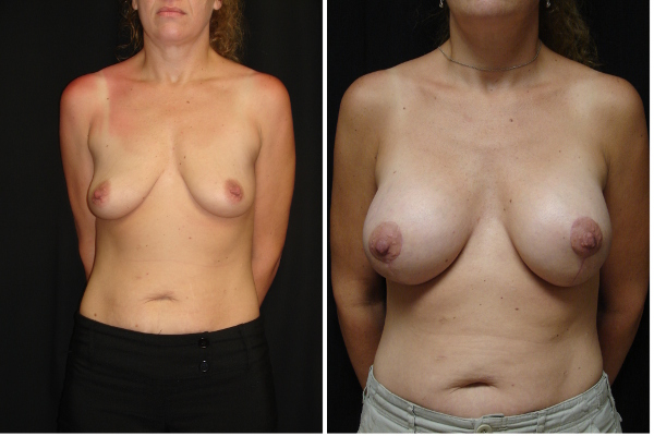 breast-reconstruction-before-and-after-virginia-beach-plastic-surgeon-VA-102-MJD