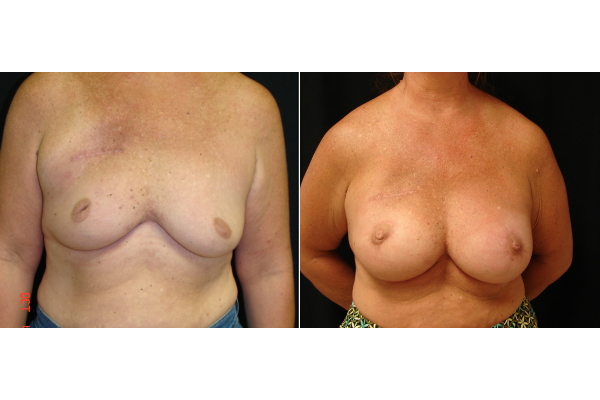 breast-reconstruction-before-and-after-virginia-beach-plastic-surgeon-VA-103-JSJ