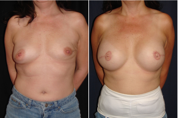 breast-reconstruction-before-and-after-virginia-beach-plastic-surgeon-VA-103-MJD