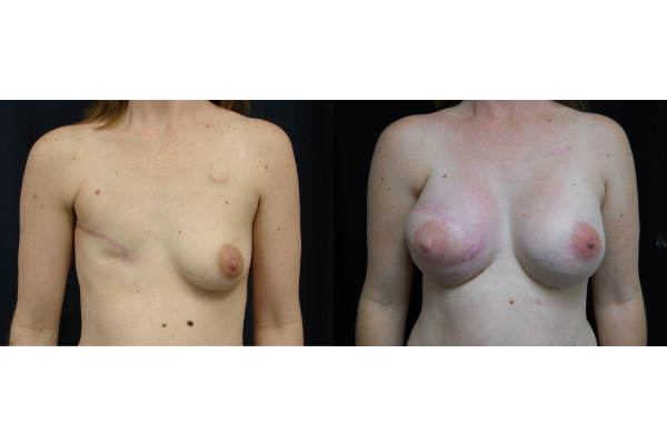 breast-reconstruction-before-and-after-virginia-beach-plastic-surgeon-VA-104-JSJ