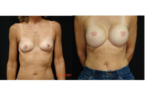 breast-reconstruction-before-and-after-virgnia-beach-plastic-surgeon-VA-101-MJD