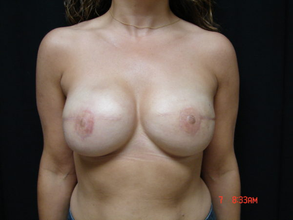 breast-reconstruction-post-op-1-virginia-beach-plastic-surgeon-VA-101-JSJ