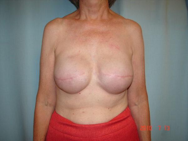 breast-reconstruction-post-op-1-virginia-beach-plastic-surgeon-VA-102-JSJ