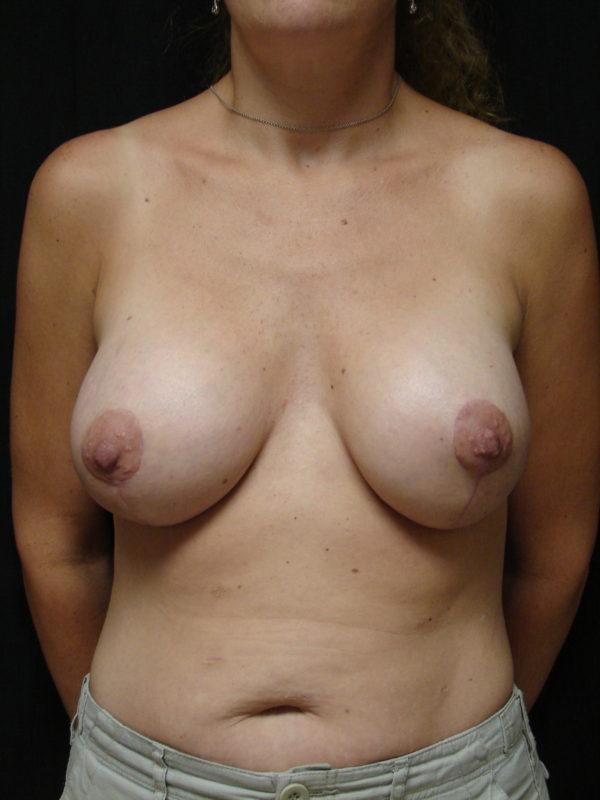 breast-reconstruction-post-op-1-virginia-beach-plastic-surgeon-VA-102-MJD