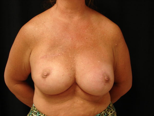 breast-reconstruction-post-op-1-virginia-beach-plastic-surgeon-VA-103-JSJ