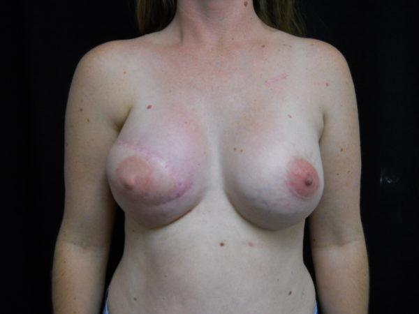 breast-reconstruction-post-op-1-virginia-beach-plastic-surgeon-VA-104-JSJ