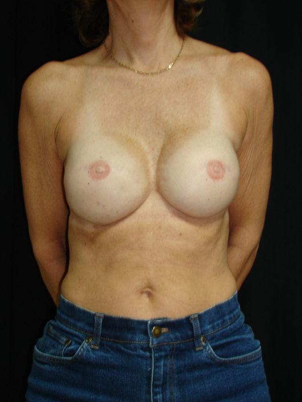 breast-reconstruction-post-op-1-virgnia-beach-plastic-surgeon-VA-101-MJD