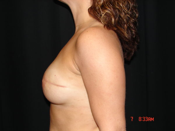 breast-reconstruction-post-op-2-virginia-beach-plastic-surgeon-VA-101-JSJ