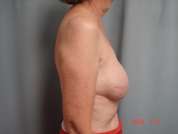 breast-reconstruction-post-op-2-virginia-beach-plastic-surgeon-VA-102-JSJ
