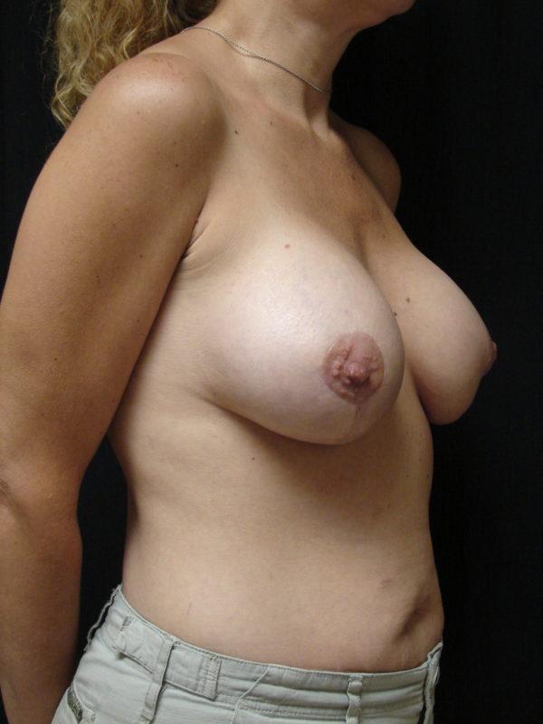 breast-reconstruction-post-op-2-virginia-beach-plastic-surgeon-VA-102-MJD