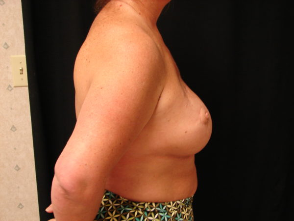 breast-reconstruction-post-op-2-virginia-beach-plastic-surgeon-VA-103-JSJ