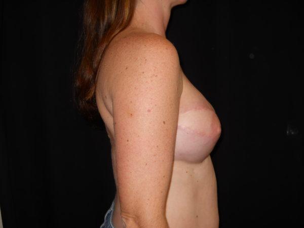 breast-reconstruction-post-op-2-virginia-beach-plastic-surgeon-VA-104-JSJ