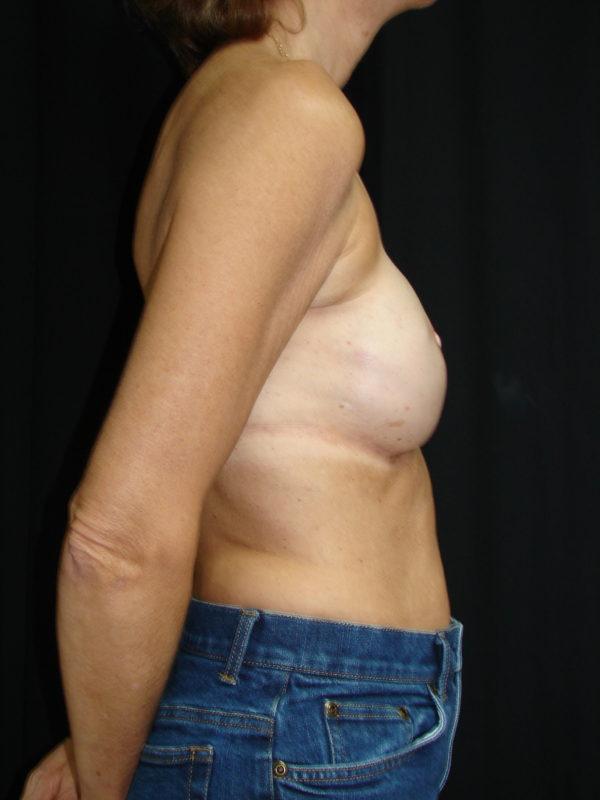 breast-reconstruction-post-op-2-virgnia-beach-plastic-surgeon-VA-101-MJD
