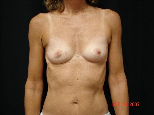 breast-reconstruction-pre-op-1-virginia-beach-plastic-surgeon-VA-101-MJD