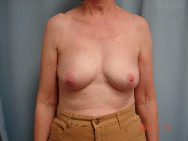 breast-reconstruction-pre-op-1-virginia-beach-plastic-surgeon-VA-102-JSJ