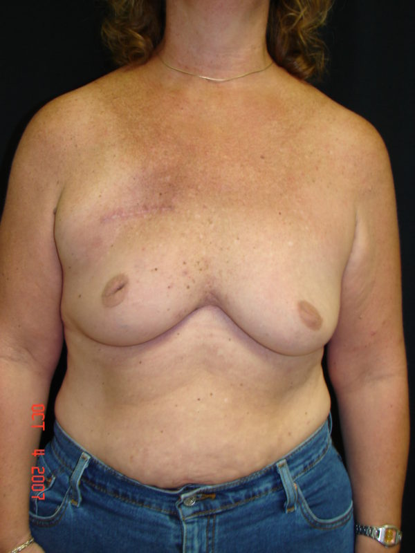 breast-reconstruction-pre-op-1-virginia-beach-plastic-surgeon-VA-103-JSJ