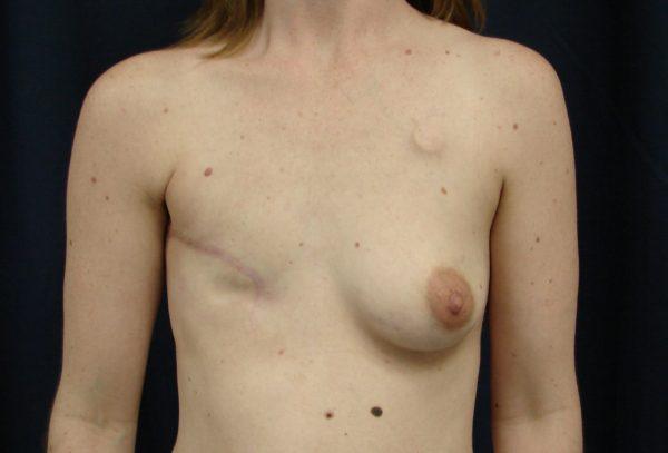 breast-reconstruction-pre-op-1-virginia-beach-plastic-surgeon-VA-104-JSJ