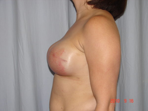breast-reconstruction-pre-op-2-virginia-beach-plastic-surgeon-VA-101-JSJ