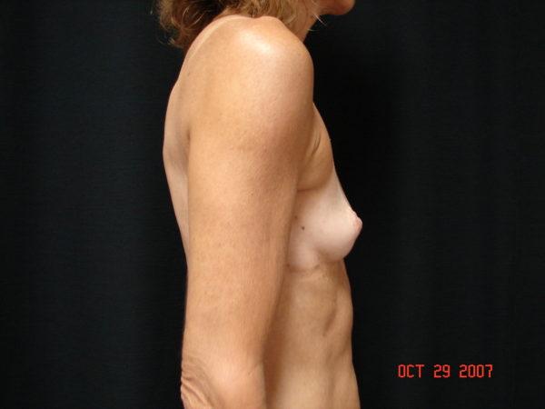 breast-reconstruction-pre-op-2-virginia-beach-plastic-surgeon-VA-101-MJD