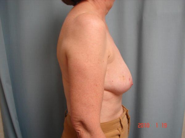 breast-reconstruction-pre-op-2-virginia-beach-plastic-surgeon-VA-102-JSJ