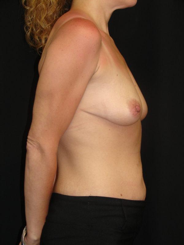 breast-reconstruction-pre-op-2-virginia-beach-plastic-surgeon-VA-102-MJD