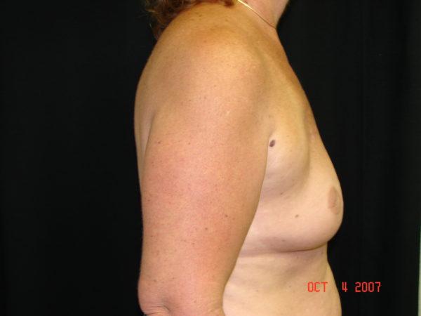 breast-reconstruction-pre-op-2-virginia-beach-plastic-surgeon-VA-103-JSJ