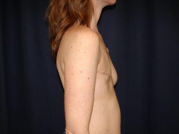 breast-reconstruction-pre-op-2-virginia-beach-plastic-surgeon-VA-104-JSJ