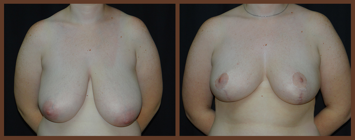 breast-reduction-before-and-after-1-virginia-beach-plastic-surgeon-VA-0039-denk