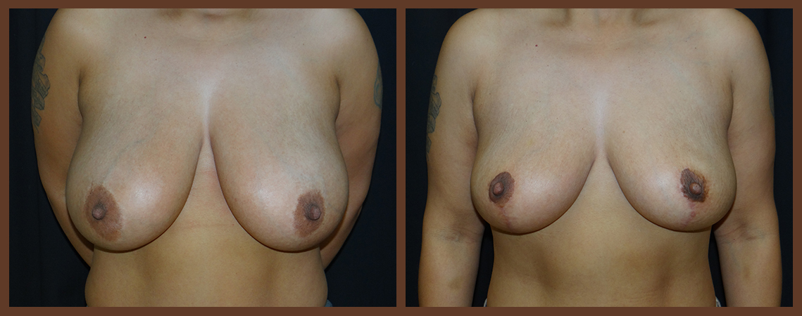 breast-reduction-before-and-after-1-virginia-beach-plastic-surgeon-VA-0040-denk