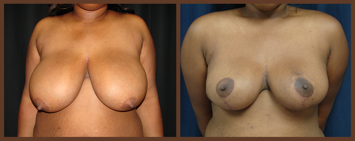 breast-reduction-before-and-after-1-virginia-beach-plastic-surgeon-VA-0041-denk