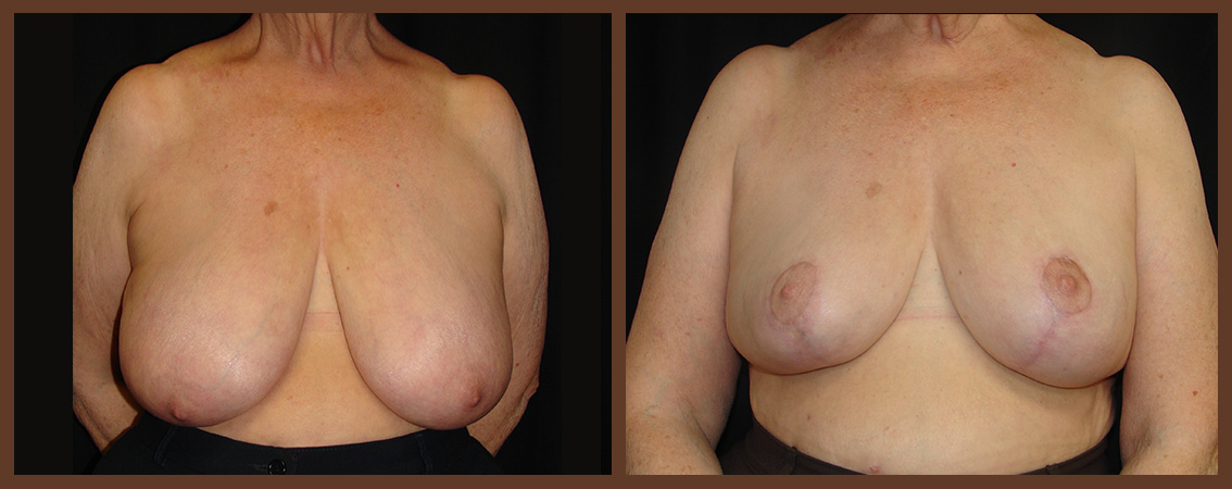 breast-reduction-before-and-after-1-virginia-beach-plastic-surgeon-VA-0042-denk