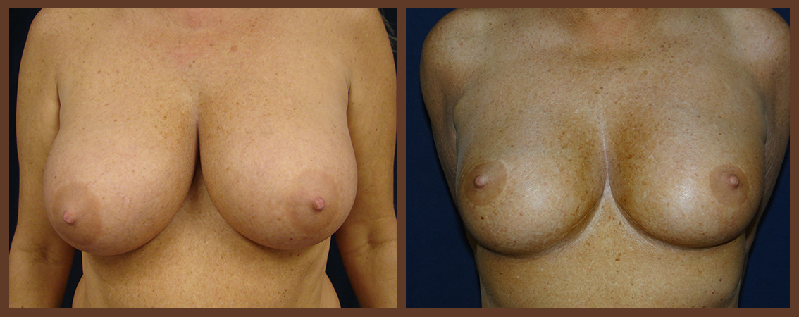 breast-reduction-before-and-after-1-virginia-beach-plastic-surgeon-VA-0043-denk