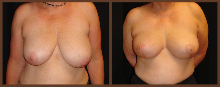 breast-reduction-before-and-after-1-virginia-beach-plastic-surgeon-VA-0044-denk