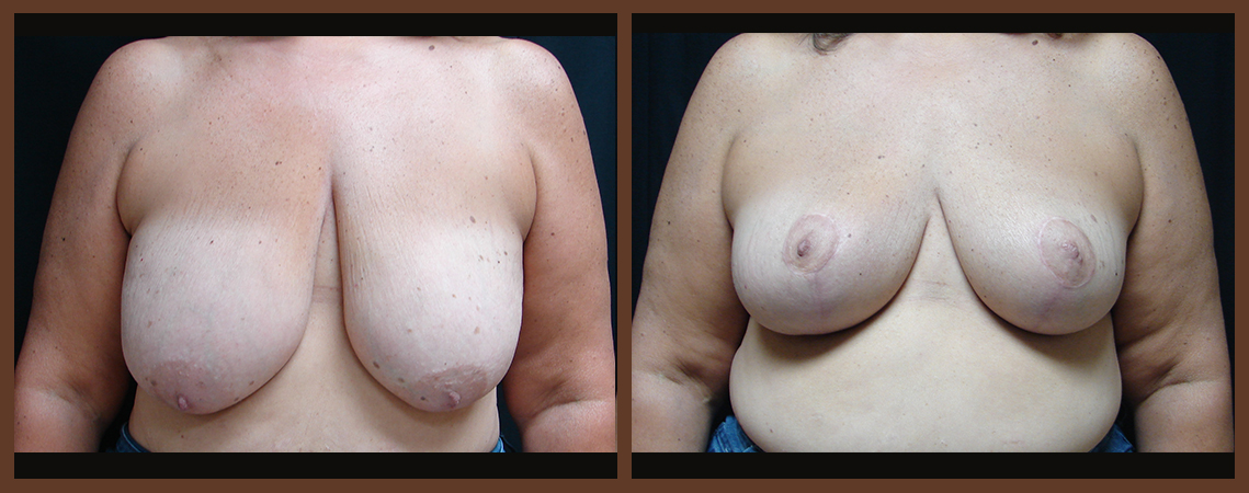 breast-reduction-before-and-after-1-virginia-beach-plastic-surgeon-VA-0045-denk