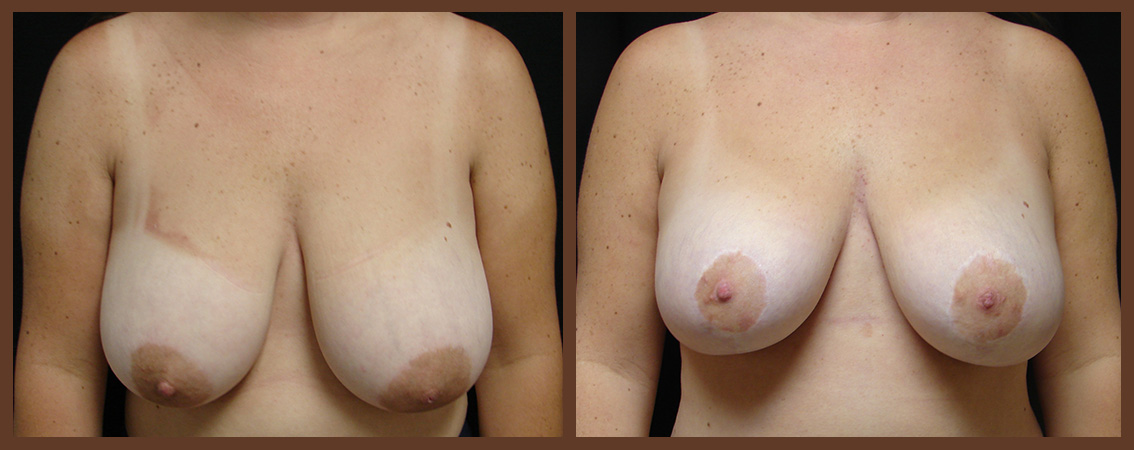 breast-reduction-before-and-after-1-virginia-beach-plastic-surgeon-VA-0046-JSA