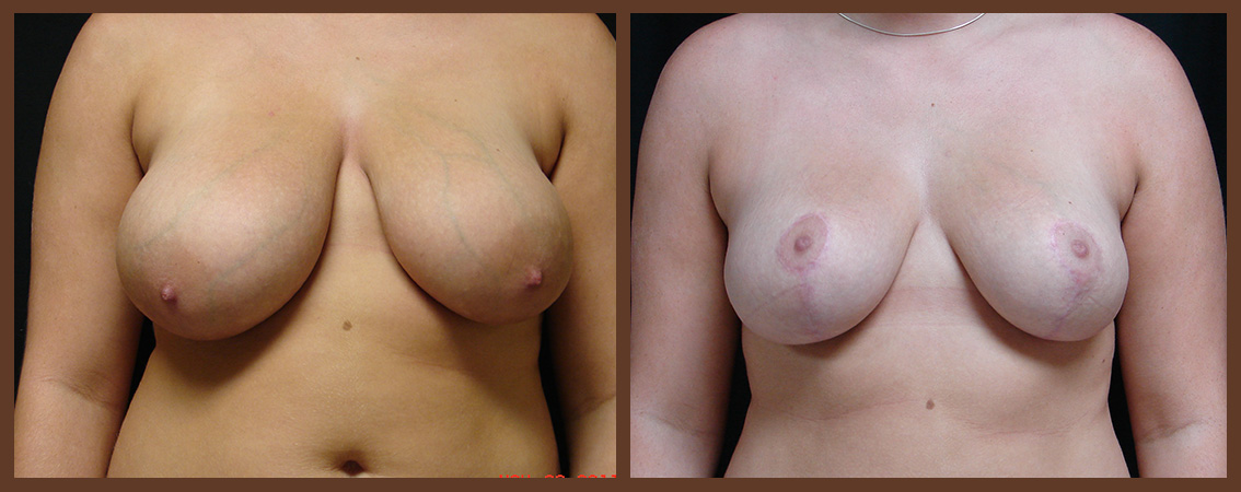 breast-reduction-before-and-after-1-virginia-beach-plastic-surgeon-VA-0047-JSA