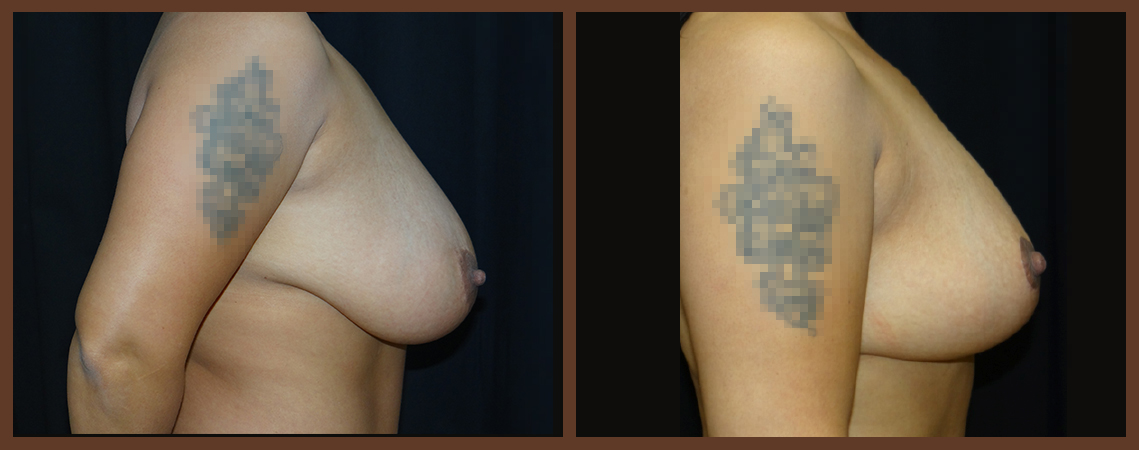 breast-reduction-before-and-after-2-virginia-beach-plastic-surgeon-VA-0040-denk